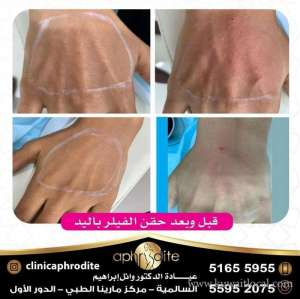 aphrodite-clinic in kuwait