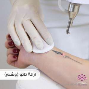 orchid-medical-center-dermatology-and-plastic-surgery in kuwait