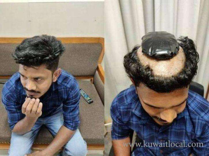 hair-brained-idea-man-caught-smuggling-1-kg-gold-under-a-wig-at-cochin-airport_kuwait